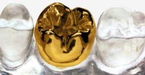 Фото: Золотые коронки на зубы