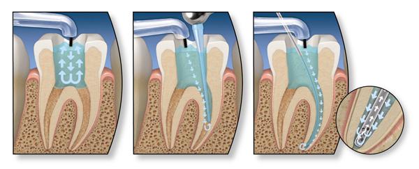 Фото: Процесс лечения стоматологического заболевания