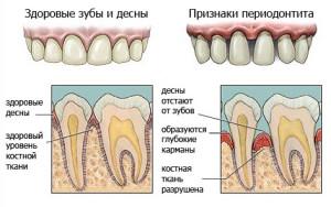 Фото: Диагностика стоматологической болезни