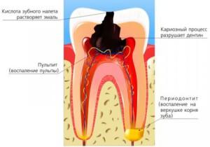 Травматический периодонтит: причины и лечение