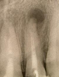 Фото: Диагностика периодонтита
