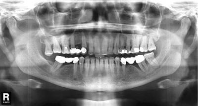 Фото: Рентген-снимок зубов
