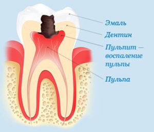 Что такое пульпит зуба и как его лечить?