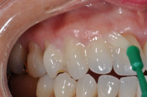 Вредно ли глубокое фторирование зубов?