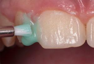 Фото: Фторирование зубов