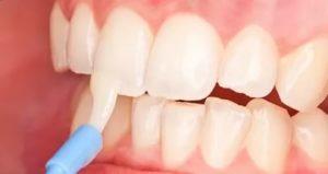 Вредно ли фторирование зубов?