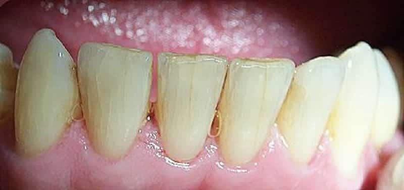 Почему на зубах появились трещины