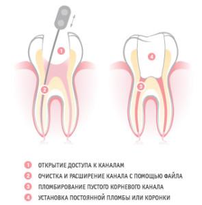 Фото: Этапы пломбирования каналов зубов