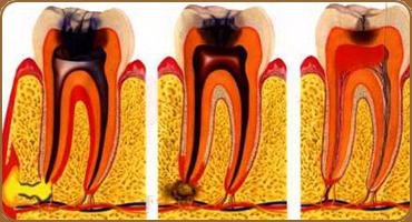 Удаление нерва в зубе - почему возникает эта необходимость