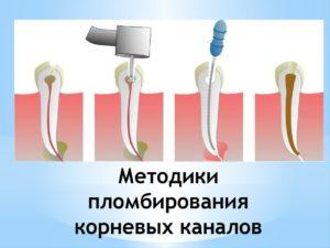 Фото: Методики процедуры