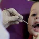 Фото: Пломбирование молочных зубов