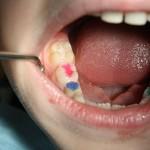 Фото: Пломбы на молочные зубы