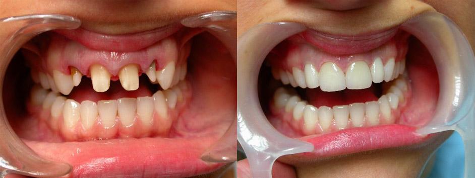 Вставить зубы из металл-керамики