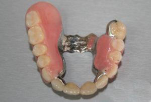 Бюгельные протезы на имплантах — эффективное решение при потере зубов, обзор цен