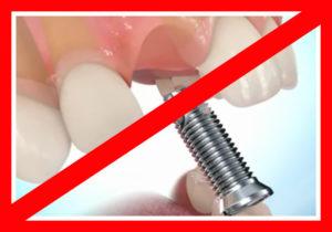 Фото: Почему имплантация запрещена?