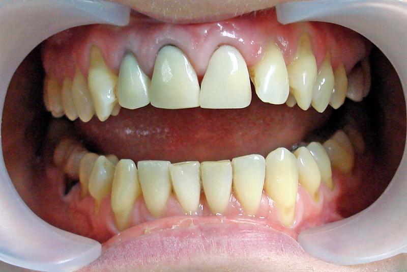 Хочу коронку на зуб