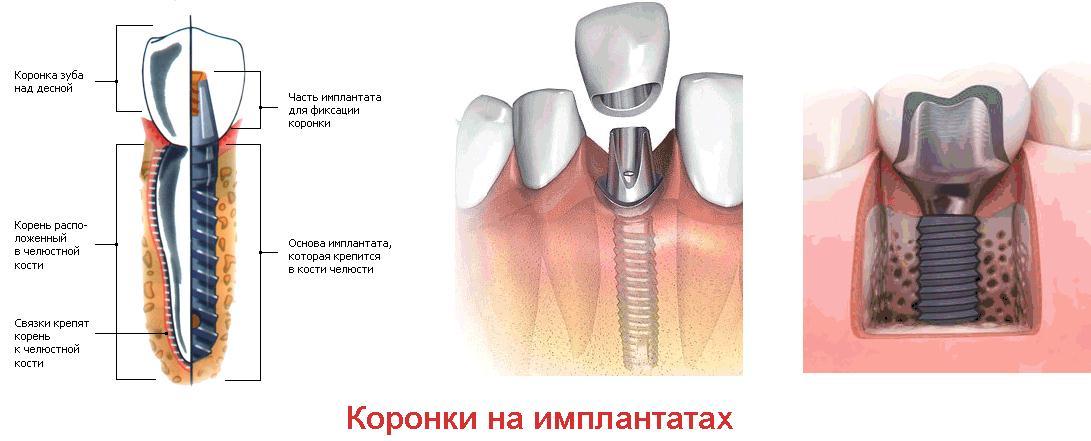 Грязевые ванны от болезней суставов