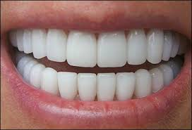 Металлокерамика на передние зубы — качественное протезирование, обзор цен в Москве