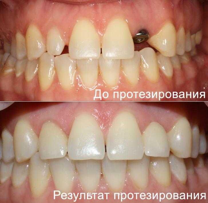 металлокерамика фото до и после