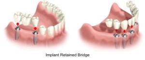 Что лучше имплант или мост?