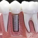 Фото: Имплант на зубы