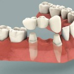 Фото: Зубной мост