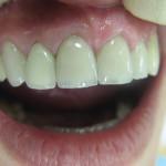 Фото: Протезы на верхние зубы