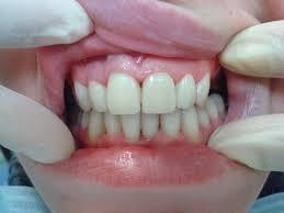 Что такое временные коронки на зубы, обзор цен