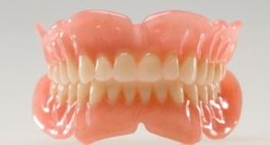 Съемные пластиночные протезы — доступный способ реставрации зубов