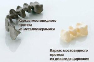 Фото: Виды протезов