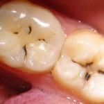 Фото: Заболевание 8 зуба