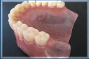 Фото: Капроновые протезы зубов