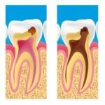 Фото: Зубной недуг