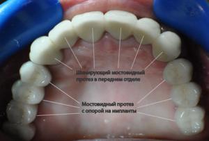 Фото: Зубной мост на имплантах