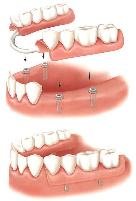 Ремонт зубных протезов в домашних условиях - возможен ли?