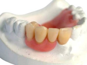Фото: Отсутствие нескольких зубов