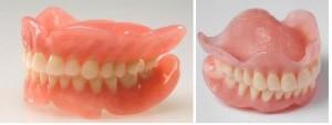 Силиконовые зубные протезы — эстетика и надежность зубов, обзор цен в Москве