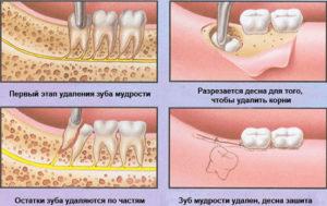 Фото: Удаление зуба