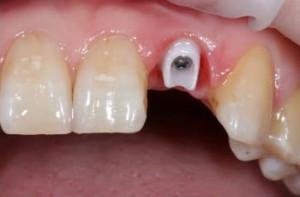 Фото: Зубной имплант