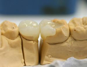 Керамическая вкладка: отличная замена разрушенному зубу, обзор цен