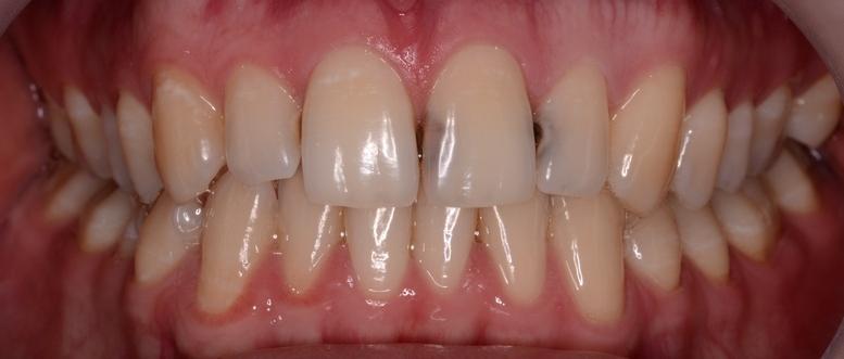 кариес зубов фото стадии как лечат