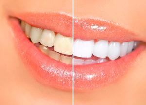 Фото: Отбеливание зубов