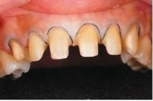 Фото: Препарирование зубов под штампованную коронку