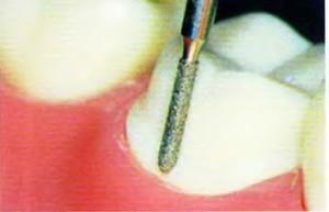 Фото: Обточка зубов