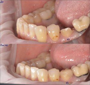 Фото: Разрушен зуб