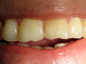 Фото: Скол зуба