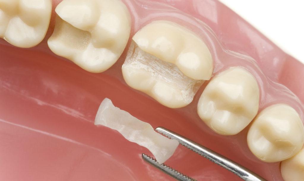 Срок службы пломб на зубах
