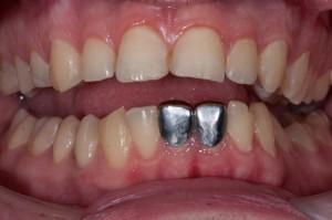 Фото: Зубные изделия