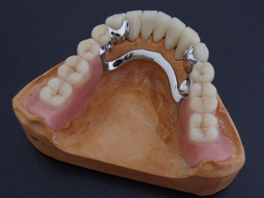 Что такое бюгельные зубные протезы цена