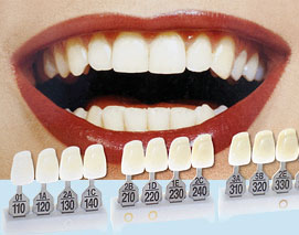 Композитные виниры— быстрая коррекция зубного ряда